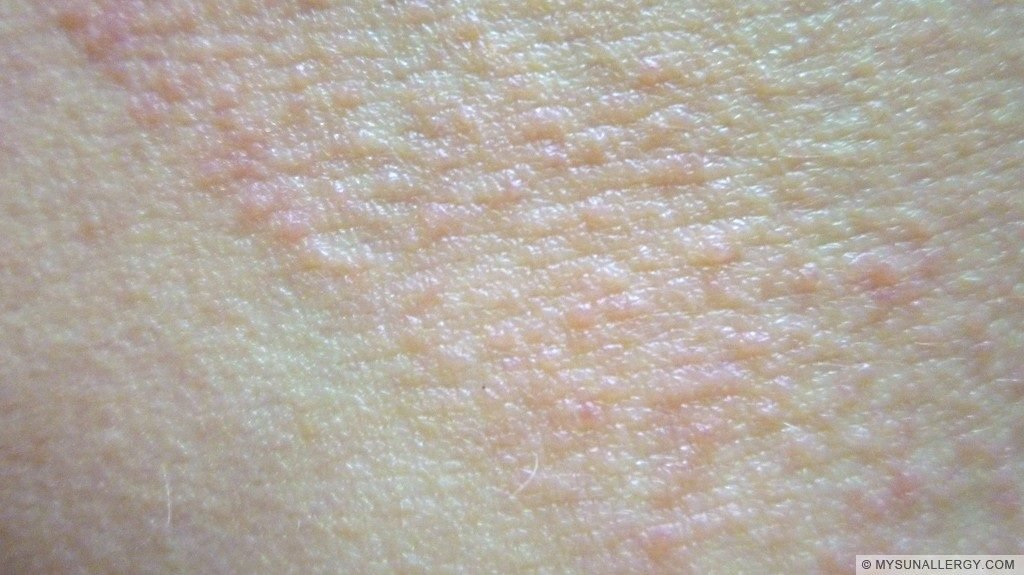 2. Polymorphous Light Eruption (PMLE) picture close up