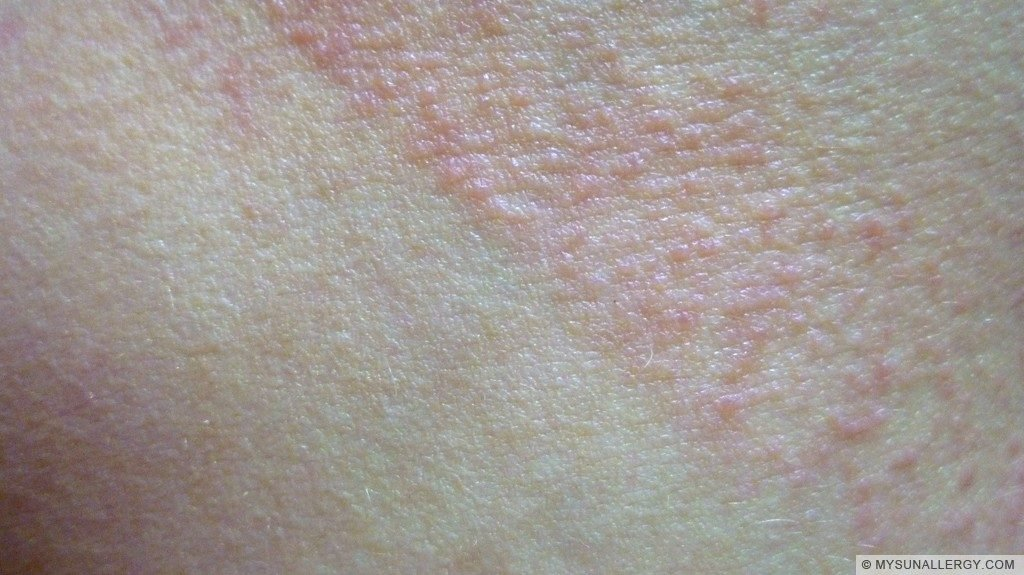 1. Polymorphous Light Eruption (PMLE) picture