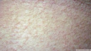 Polymorphous Light Eruption (PMLE) picture - back of the leg
